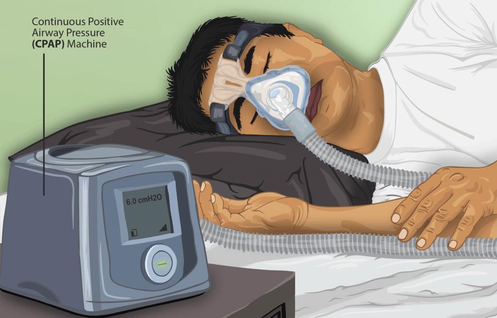Sleep Apnea: Causes, Symptoms, & Treatments 2