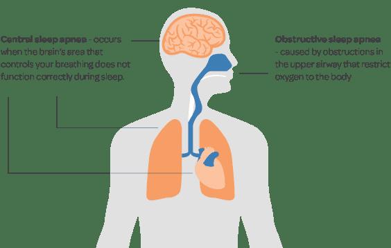 Sleep Apnea: Causes, Symptoms, & Treatments 1